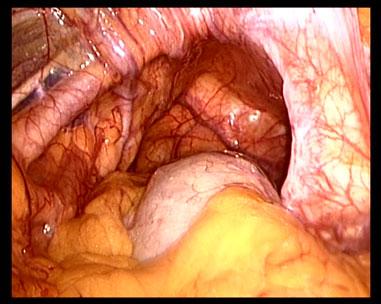 Da quello che ci sarà varicosity a gravidanza